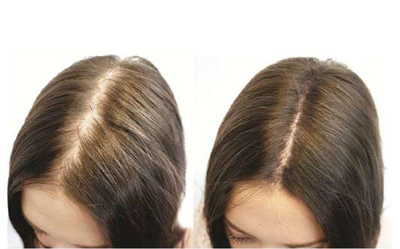 dầu mọc tóc